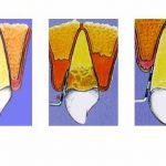 Come risolvo il problema delle tasche parodontali?