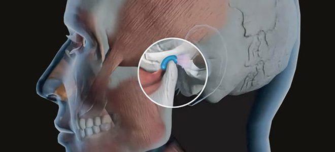 Disturbi della mandibola: dolori articolari, click, affaticamento muscolare