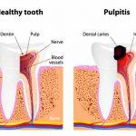 Pulpite dentale: cause, sintomi e rimedi