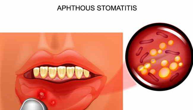 Cos'è la stomatite aftosa: terapia e sintomi