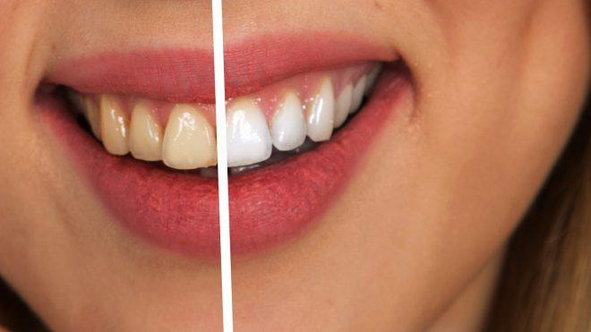 Faccette dentali: costo e opinioni